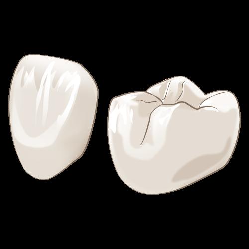 神戸でセラミック治療ならパールストリート歯科