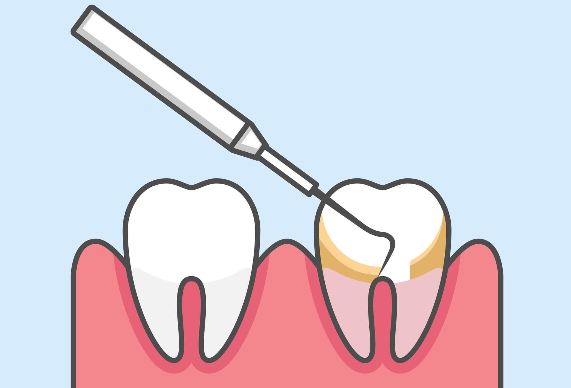 三宮で歯石取り・歯石除去・歯のクリーニングならパールストリート歯科